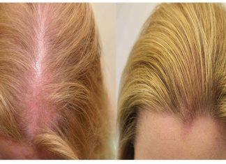 Strata vlasov je problém 320d1772902