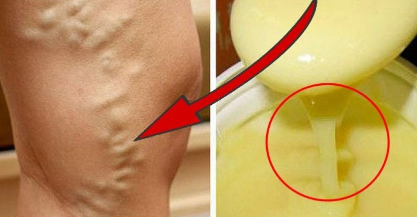 Лечебен мехлем от невен при разширени вени - Рецепта | varicose-veins.dptsarts.com